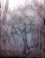 tree and path 02 (process 1)